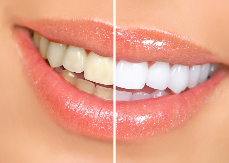teeth whitening services in Milford, MA